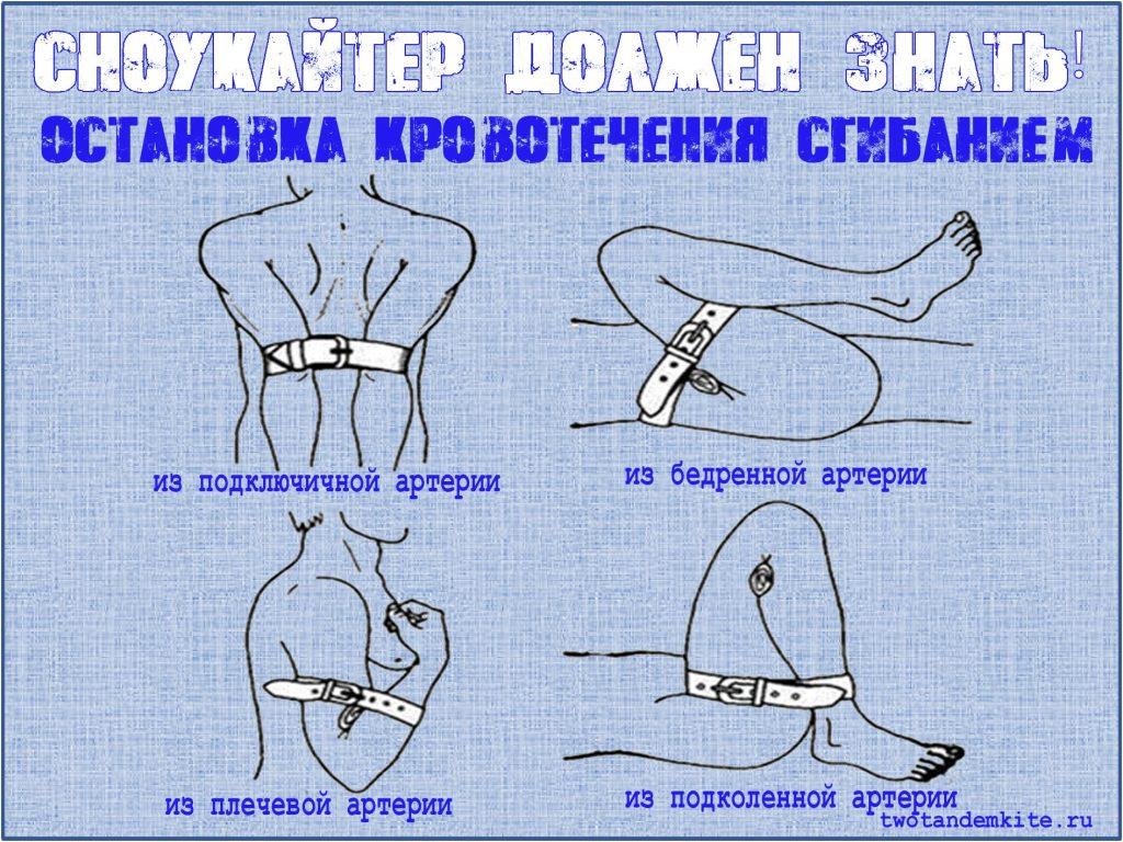 первая помощь остановка кровотечения